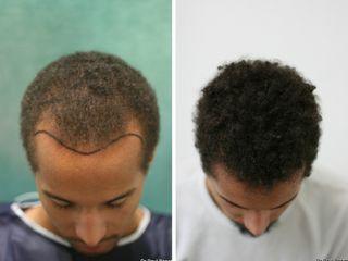 Avant après cheveux afro