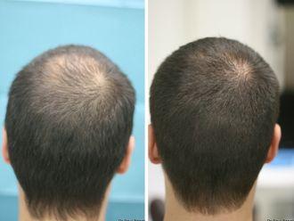 Greffe de cheveux-633873
