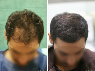 Greffe de cheveux-633874