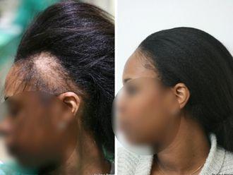 Chirurgie Esthétique-633877