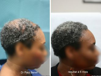 Greffe de cheveux-633878