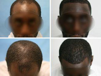 Greffe de cheveux-633887