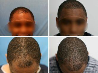 Greffe de cheveux-633888