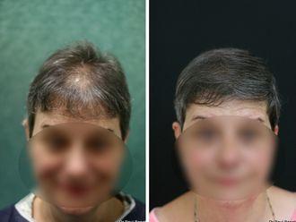 Greffe de cheveux-633889