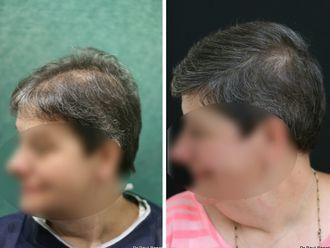 Greffe de cheveux - 633890