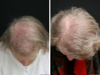 Greffe de cheveux-633892