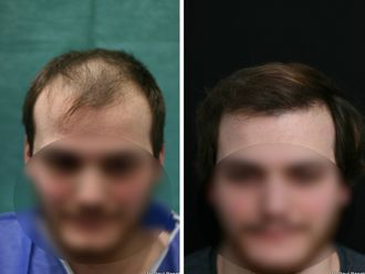 Greffe de cheveux - 633893