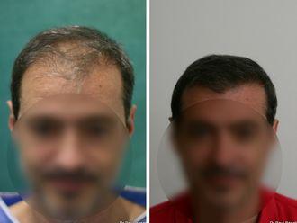 Greffe de cheveux-633894