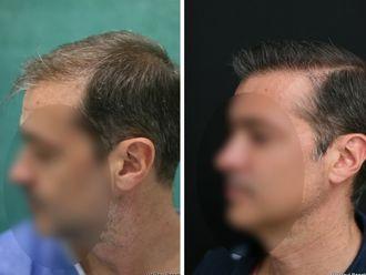 Greffe de cheveux - 633895