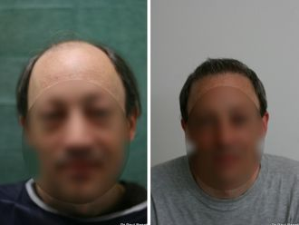 Greffe de cheveux - 633896
