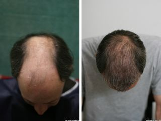 Greffe avant après 18 mois