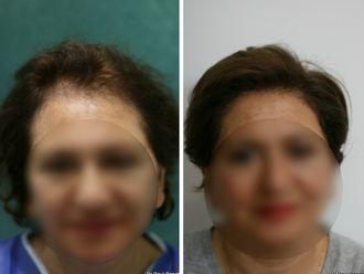 Greffe de cheveux - 633898