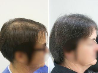 Greffe de cheveux-633899