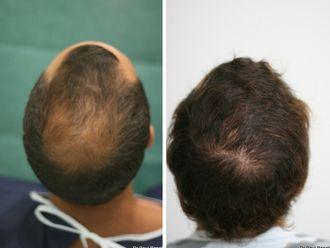 Greffe de cheveux-633900