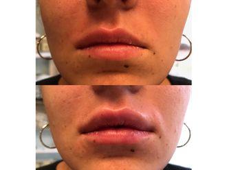 Augmentation des lèvres-711226