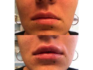 Augmentation des lèvres - Dr Mireille Gianno-Tournat