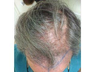 1 an après traitement capillaire