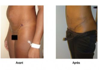 Abdominoplastie-561685