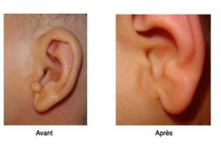 Résection d'une boule à l'oreille