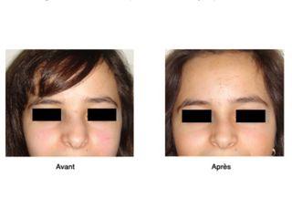 Avant après Déviation de la cloison nasale