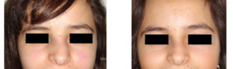 Déviation de la cloison nasale