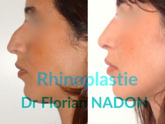 Rhinoplastie-569525