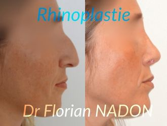 Rhinoplastie-569526
