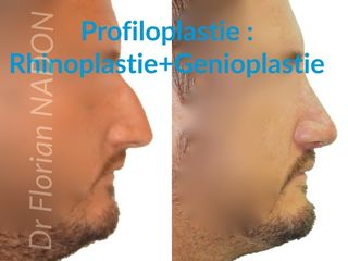 Avant après Profiloplastie