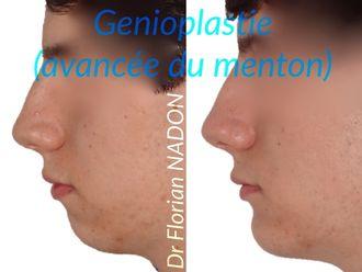Génioplastie-569732
