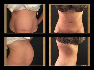 Plastie abdominale après grossesse