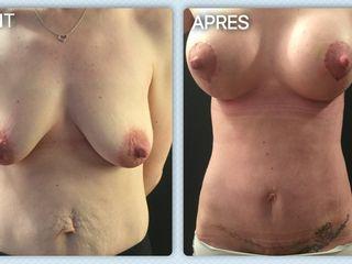 Plastie abdominale + Plastie mammaire