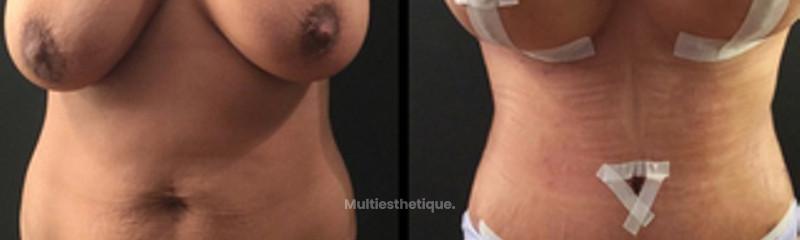 COMBINÉE OPERATION : plastie abdominale + lifting de seins