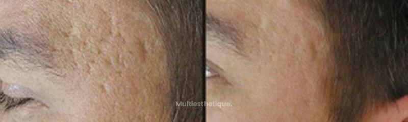 Résultat suite à un traitement pour les cicatrices et les pores dilatés