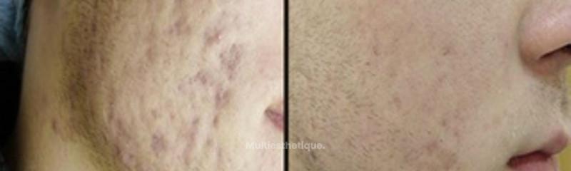 Résultat suite à un traitement de l'acné