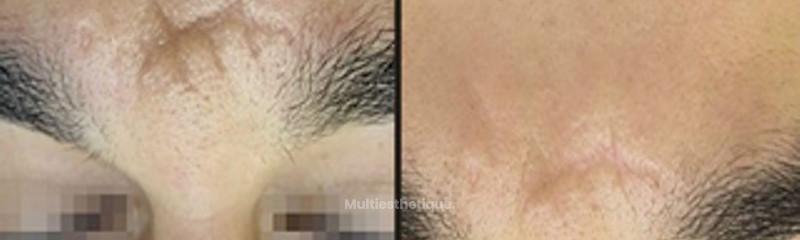Résultat suite à un traitement des cicatrices