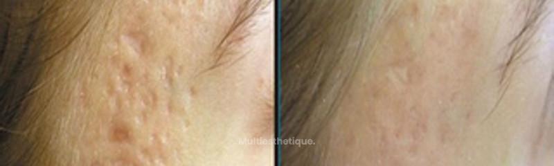 Résultat traitement des cicatrices post-acné