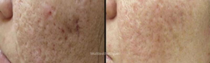 Résultat suite à un traitement des cicatrices post-acné