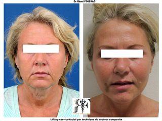 Avant après  Lifitng cervico-facial