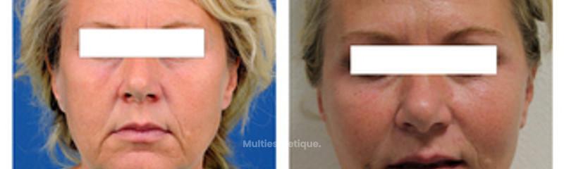 Lifitng cervico-facial