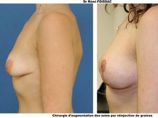 Lipostructure des seins par tissu gras