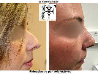 Rhinoplastie-576194