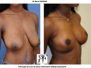 Avant après  Chirurgie de correction de ptose mammaire