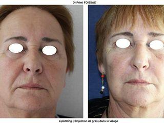 Avant après  Lipofilling du visage