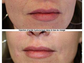 Avant après  Injection d'acide hyaluronique dans le bas du visage