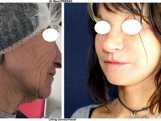 Avant après  Lifting bas du visage et du cou