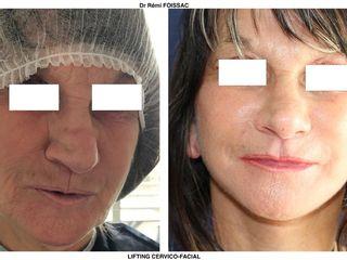 Avant après  Lifting du bas du visage et du cou
