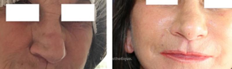 Lifting du bas du visage et du cou