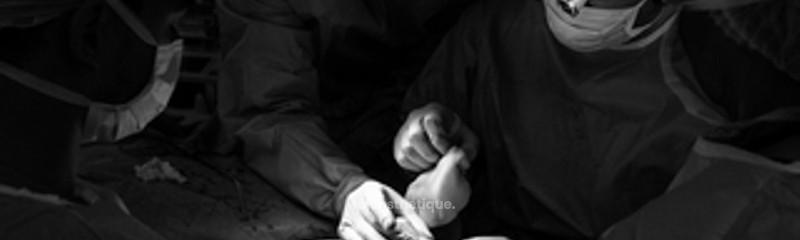 Docteur Rémi FOISSAC - Photos de chirurgie de rhinoplastie