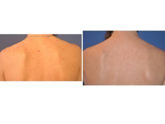 Traitement anti-acné - 543540