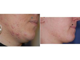 Traitement anti-acné - 543559